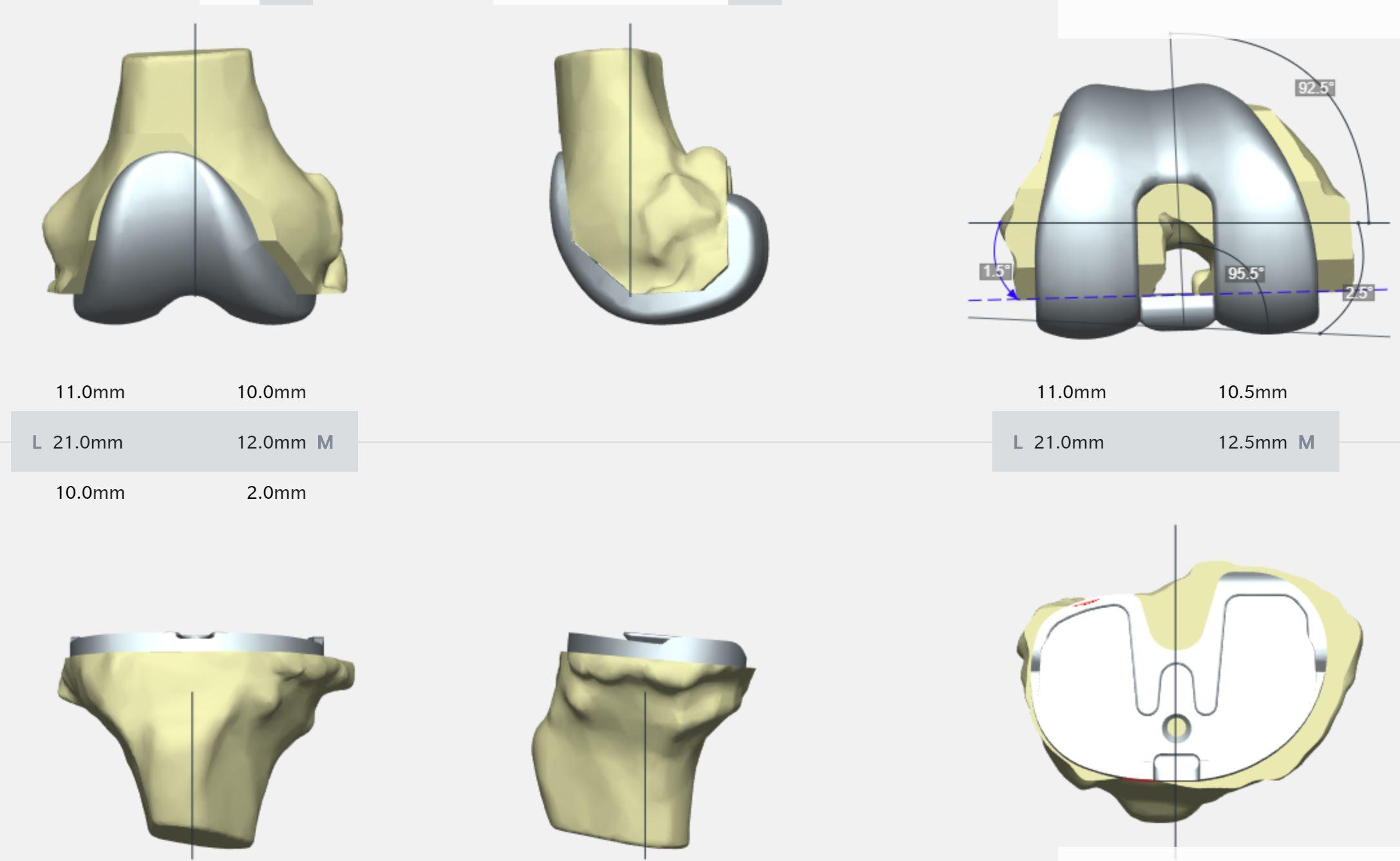 My Knee PSI Knieprothese Salzburg Dr. Planitzer Orthopäde