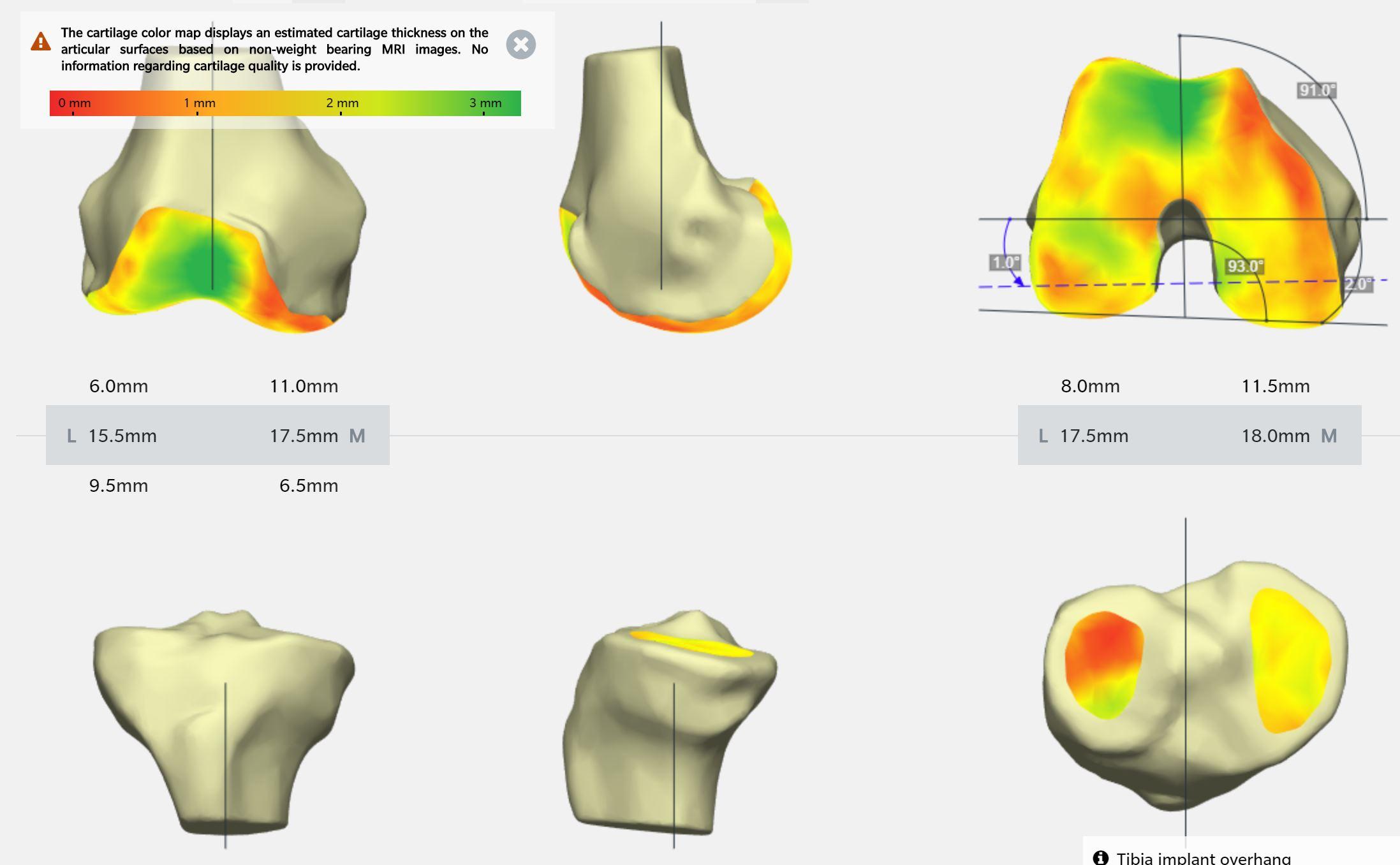 Neues Kniegelenk My Knee Salzburg Dr. Planitzer