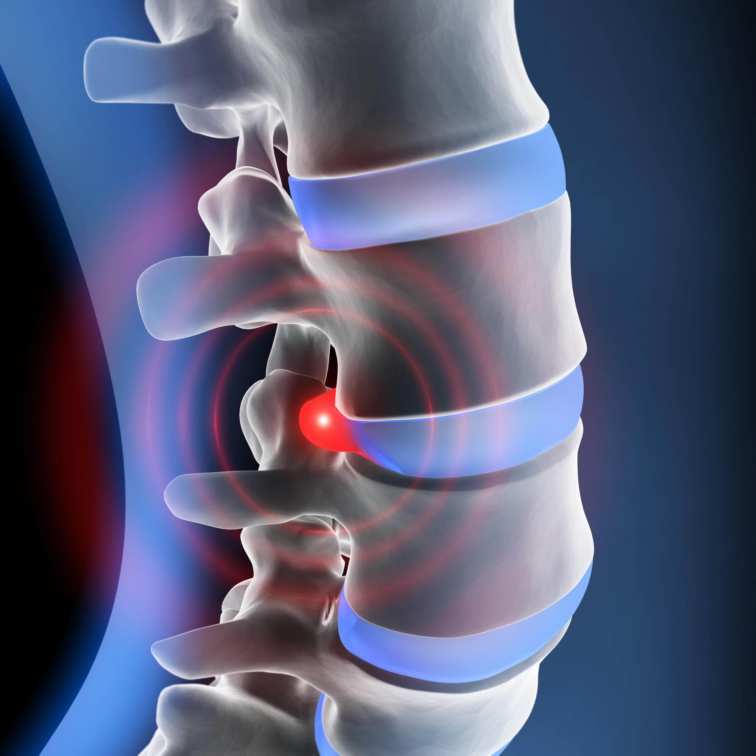 Rückenschmerz Orthopäde Salzburg Dr. Planitzer Alexander