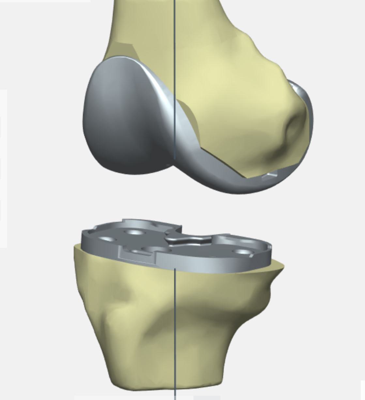 My Knee PSI Nvigatio Knieprothese Salzburg Orthopäde Dr. Planitzer Alexander