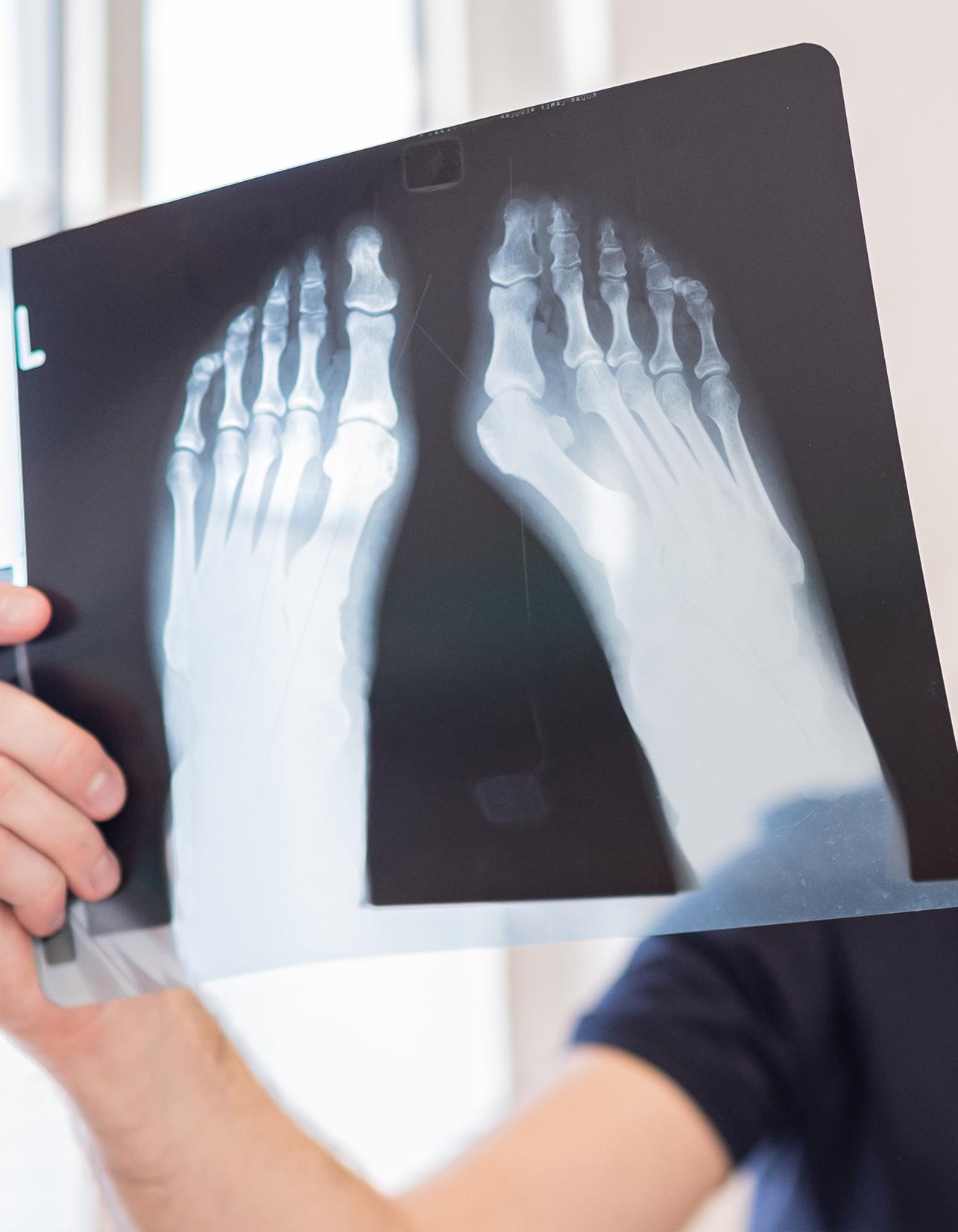 Röntgen Hallux Valgus Orthopäde Salzburg Dr. Planitzer