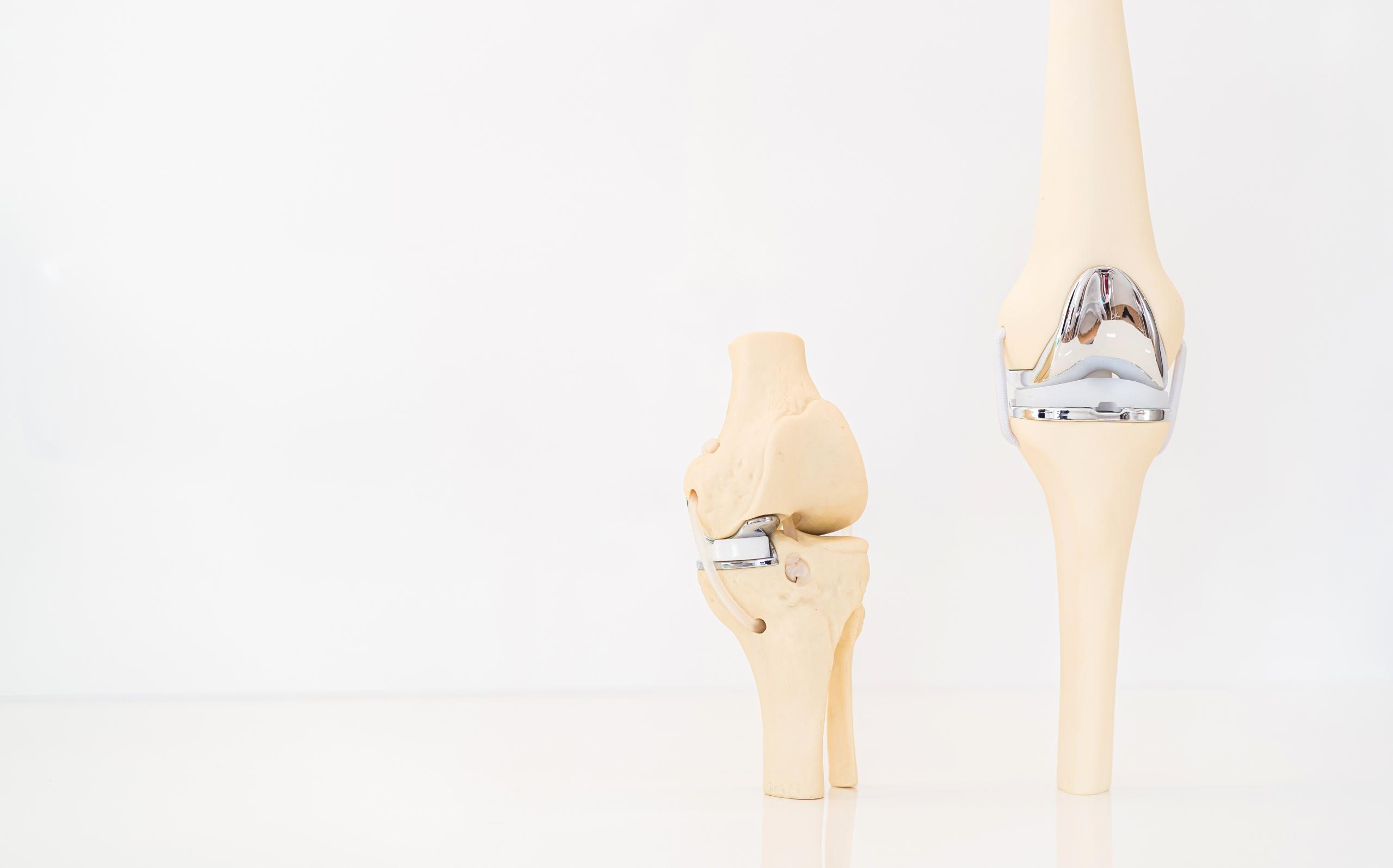 neues Kniegelenk Salzburg Dr. Planitzer